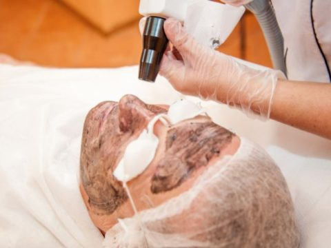 top laser treatments for acne scars