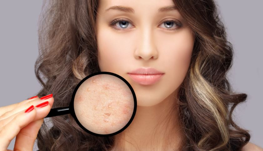 acne scar laser treatment for face